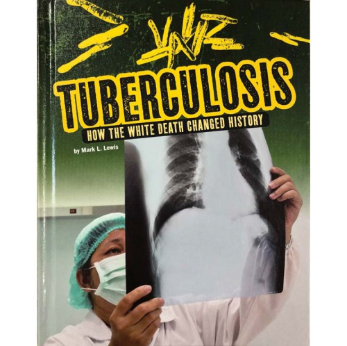 Infected - Tuberculosis